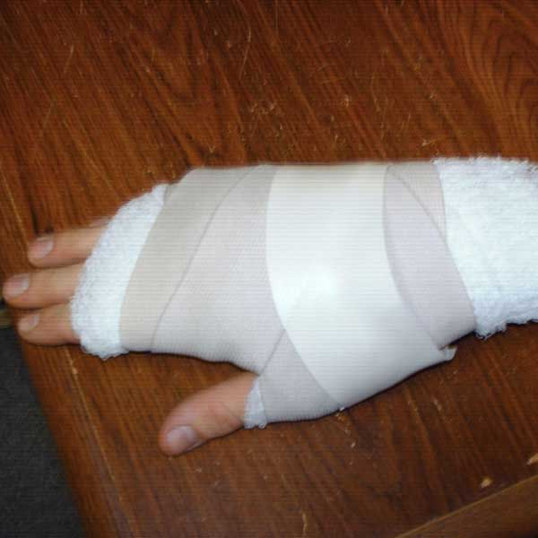 hand wrapped in gauze